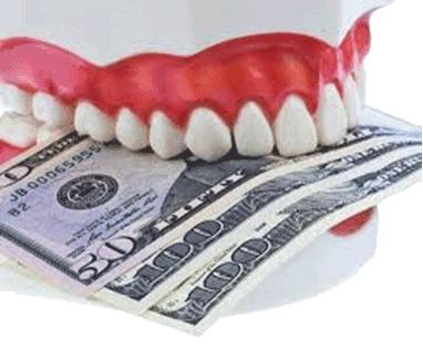 implant fiyatları, implant üreticileri, implant tedavisi