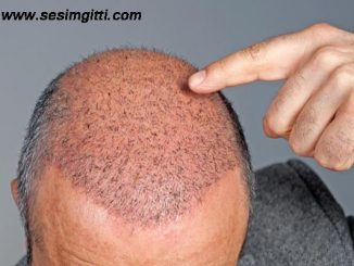 saç ekim yöntemleri, saç nasıl ekilir, saç ekimi uygulamaları