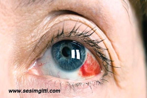göz tansiyonu tanısı koyulması, göz tansiyonu nedir, göz tansiyonu nasıl tedavi edilir