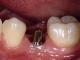 dayanıklı implant yapımı, implant nasıl yapılır