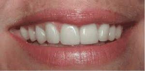lamine diş, lamine dişin kişiye etkisi, lamine diş yapımı