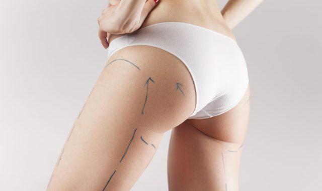 bakırköy liposuction, liposuction yapımı, bakırköy liposuction operasyonu