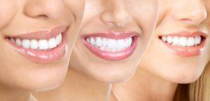 zirkonyum diş, zirkonyum diş fiyatları