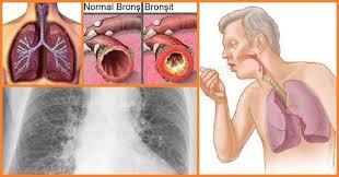 bronşit nedir, bronşit tedavisi, bronşit nasıl tedavi edilir