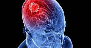 beyin tümörü, beyin tümörü tedavisi, beyin tümörü nasıl tedavi edilir