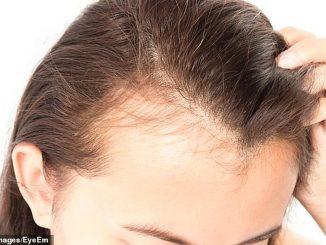 kadınlarda saç dökülmesi, kadınların saçı neden dökülür, kadınlarda saç dökülmesi nedeni