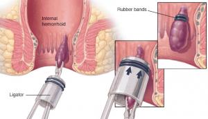 kanamalı hemoroid, hemoroid belirtileri, hemoroid tedavisi