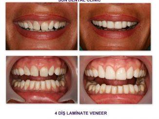 lamine diş fiyatları, lamine diş operasyonu, lamine diş uygulamaları