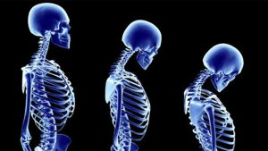 osteoporoz nedir, osteoporoz hastalığı, osteoporoz tedavisi var mı