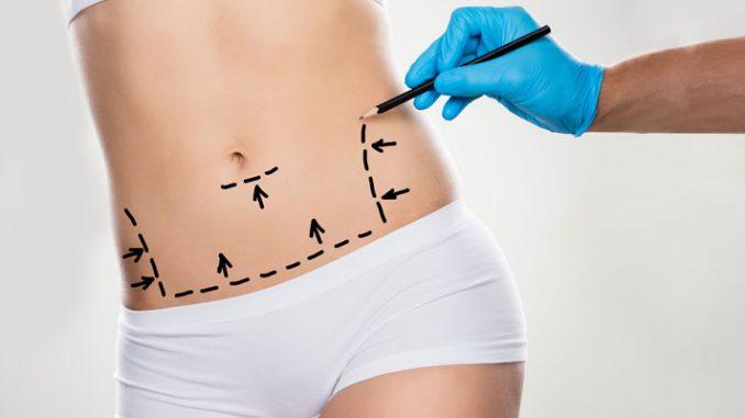 vücut operasyonları, vücut estetiği, vücut estetiği operasyonları