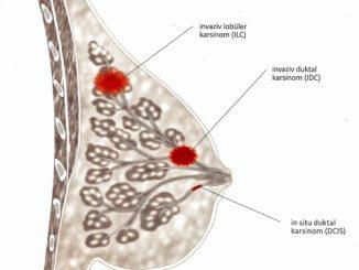 invaziv duktal karsinom nedir, invaziv duktal karsinom belirtileri, invaziv duktal karsinom tedavisi