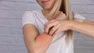 alerji teşhisi, alerjiyi önleme, alerji önleme yöntemleri