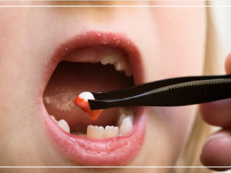 diş çekimi, diş çekimi yapılması, diş çekimi nasıl yapılır