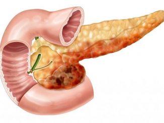 kronik pankreatit belirtisi, kronik pankreatit nedir, kronik pankreatit ne demek
