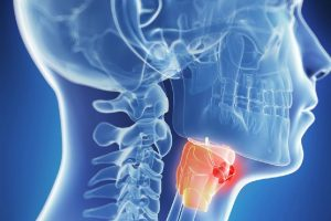 laringeal kanser, laringeal kanser nedir, laringeal kanser tedavisi